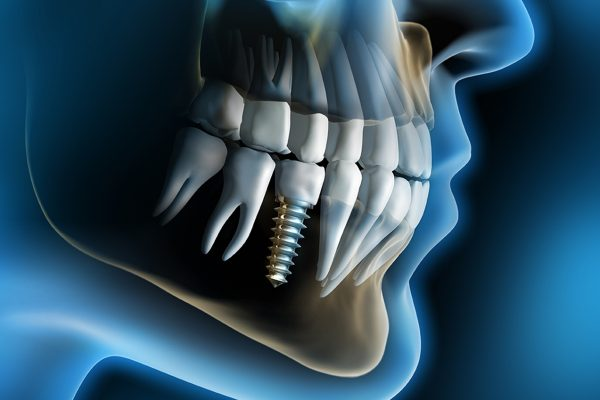 Dental_Implant2